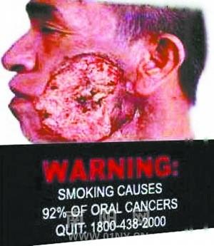 口腔癌-卷烟包装有望加大警语 专家建议增加图片标识